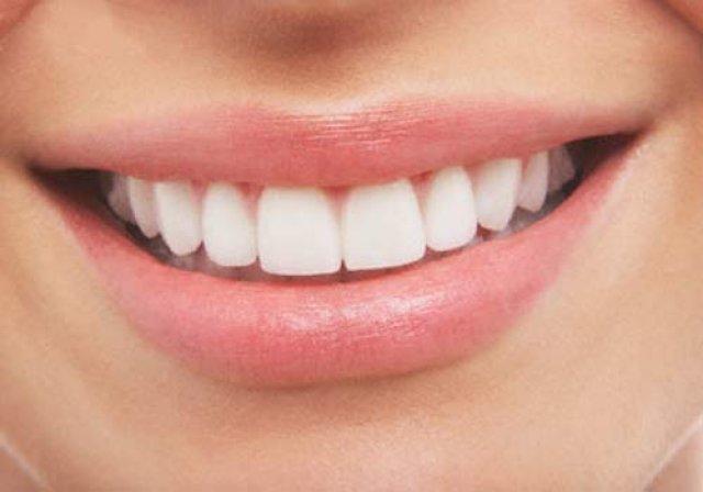 Luce una sonrisa sana y bonita